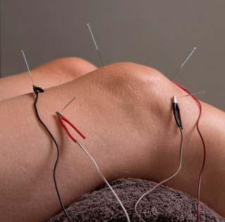 Afbeelding-Elektro-acupunctuur-2