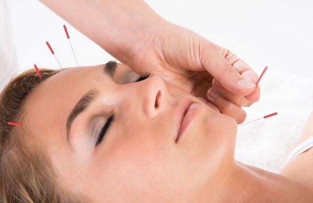cosmetische-acupunctuur-ias-web-847x551
